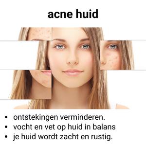Gecombineerde huid / acne / grove poriën