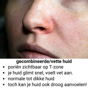 Gecombineerde / vet huid